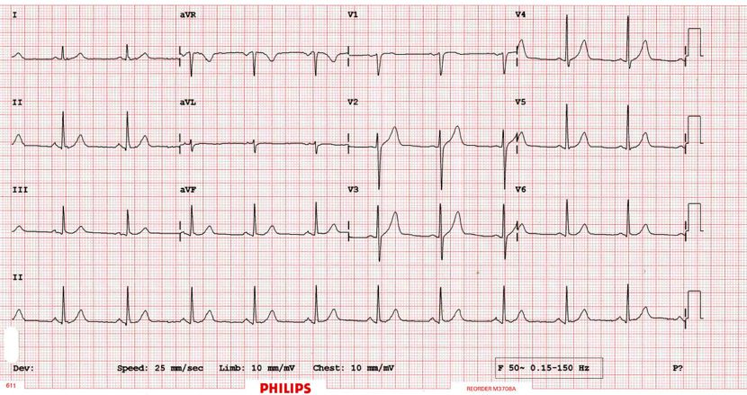 A normal ECG trace